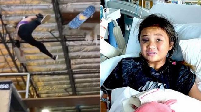 Vận động viên Trượt Ván 11 tuổi gặp tai nạn bất ngờ rơi tự do từ độ cao 4m, chấn thương nghiêm trọng